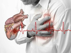 09-1376038076-06-1375764459-6-heartdisease-600